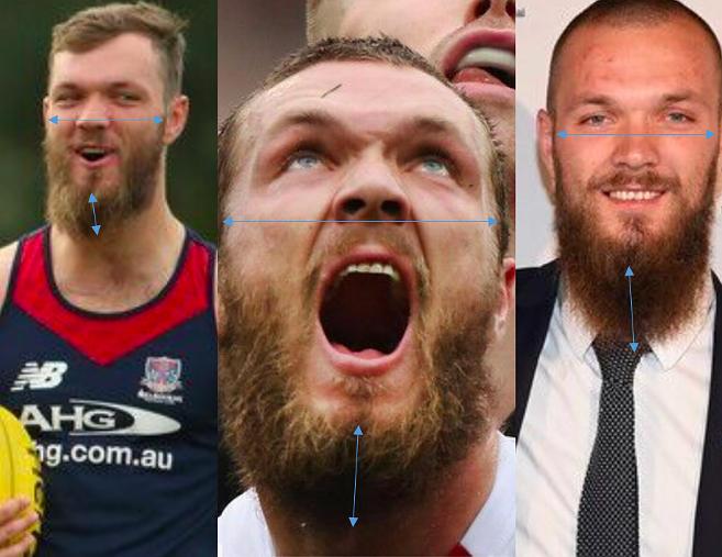 max gawn beard
