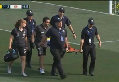 Chilean player seriously injured in goal scoring play