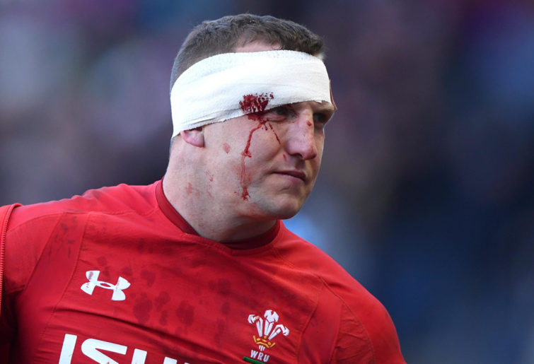 Hadleigh Parkes after taking a battering in a Six Nations match