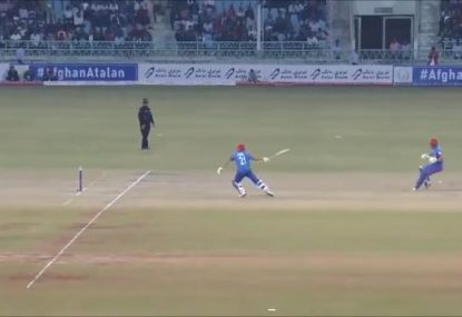 Afghanistan 17-year-old gets ruthlessly torched