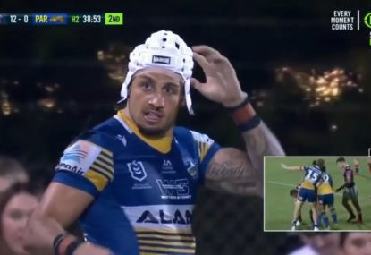 Blake Ferguson struggles to find headgear that fits after suffering a very nasty head gash